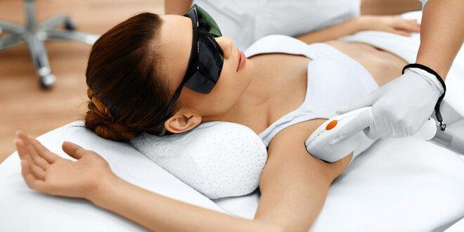 Trvalá E-light laserová epilácia