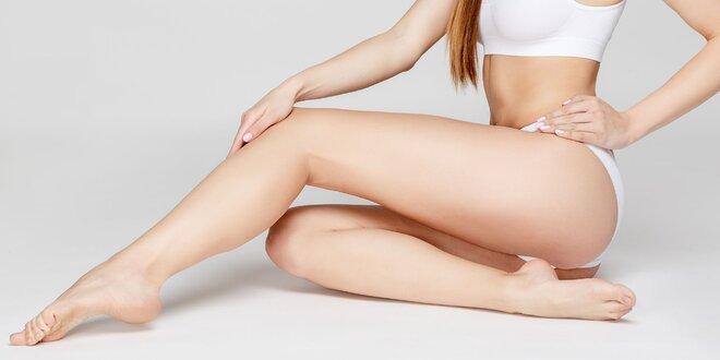 Odstránenie strií pomocou injekčného napnutia pokožky