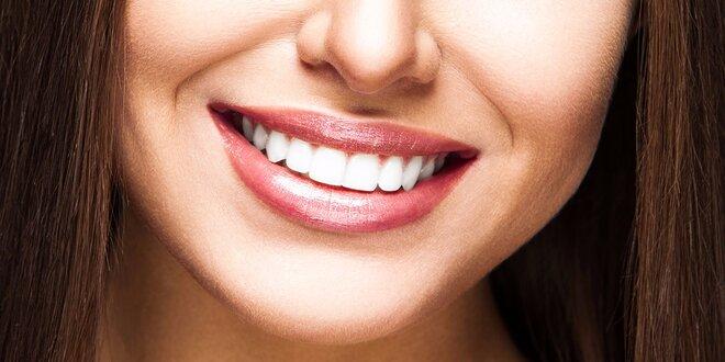 Laserové bielenie zubov za úžasnú cenu!