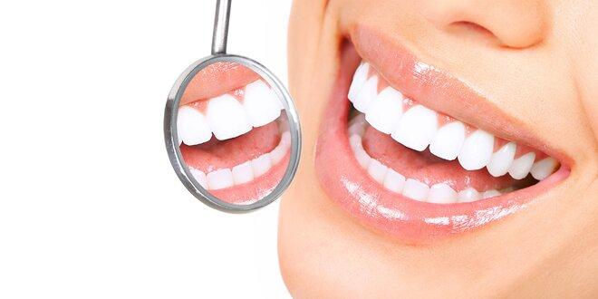 Laserové bielenie zubov v Prestige