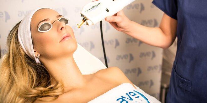 Omladenie pleti a liečba akné a jaziev laserom