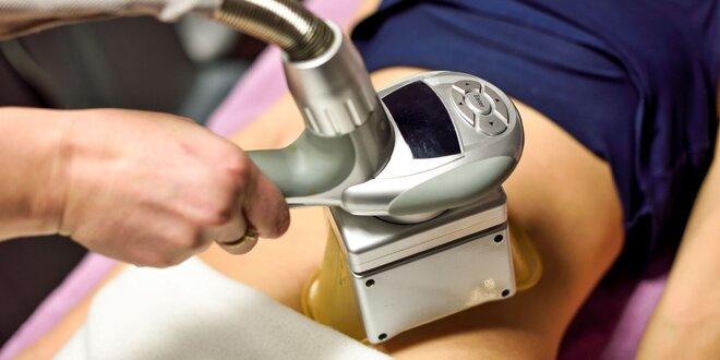 Stop tukom s kryolipolýzou+vibračnou plošinou