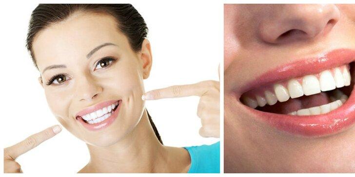 Laserové bielenie zubov
