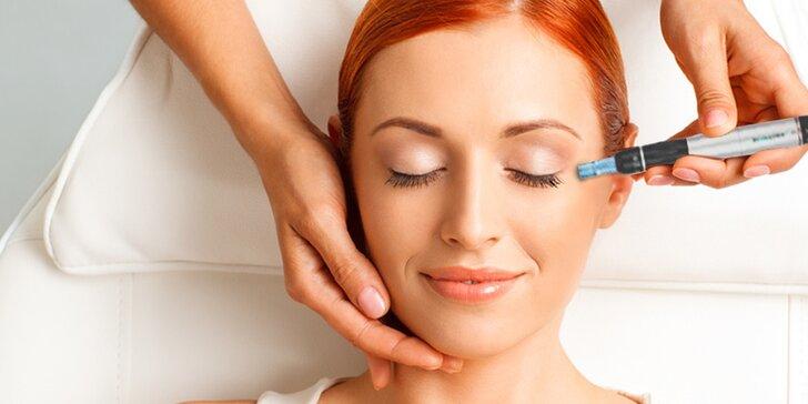 Dermapen - mikroihličková terapia pre krásnu pleť