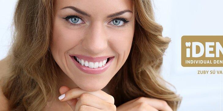 Odborná dentálna hygiena