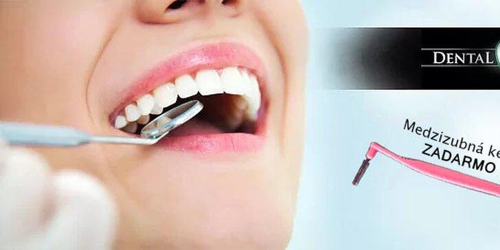 Top ambulantná dentálna hygiena alebo bielenie zubov