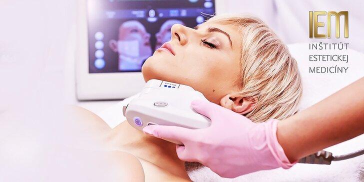 Ultherapia - nechirurgický dolný lifting líc pre mladistvú tvár
