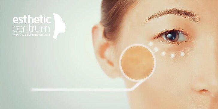 Revolučné odstránenie pigmentových škvŕn - Skin Brightening
