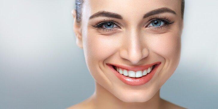 Profesionálne bielenie zubov v štúdiu krásy Bellande
