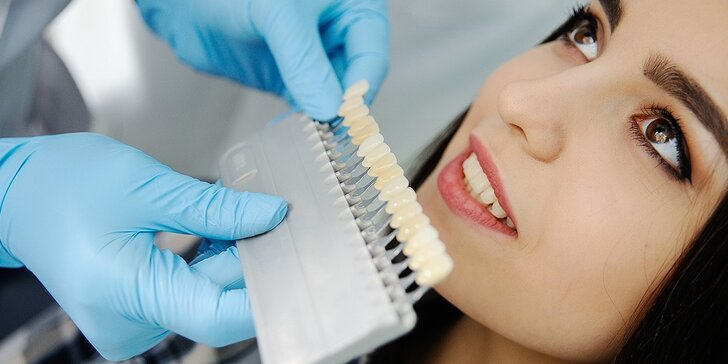 Profesionálne bielenie zubov Power Whitening aj s dentálnou hygienou