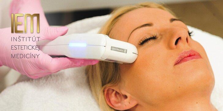 Nechirurgický facelifting čela a okolia očí s efektom nadvihnutia obočia. Omladnite Ultherapiou!