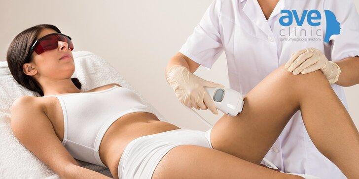 Profesionálna laserová epilácia častí tela podľa výberu