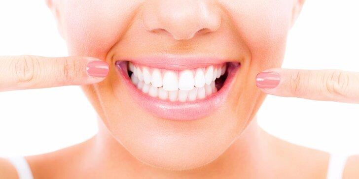 Dentálna hygiena s fluoridáciou, bielenie zubov alebo liečba zuba vŕtaním a biela plomba - prehliadka zdarma!
