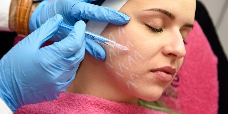Omladenie a vyhladenie jemných vrások s mezoterapiou tváre alebo krku a dekoltu. NOVINKA: mezoterapia očného okolia alebo vlasov