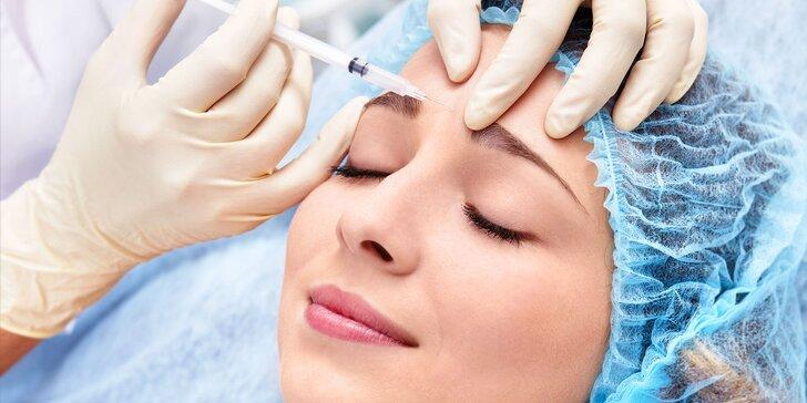 Aplikáciu botulotoxínu či kys. hyalurónovej do časti tváre podľa vášho výberu