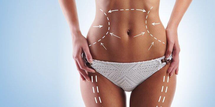 Ultrazvuková liposukcia či proticelulitídna masáž