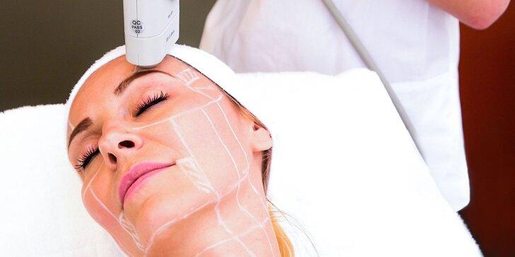 Hifu Ultherapy - Nechirurgický facelifting čela a očného okolia, lifting paží či krku a podbradku