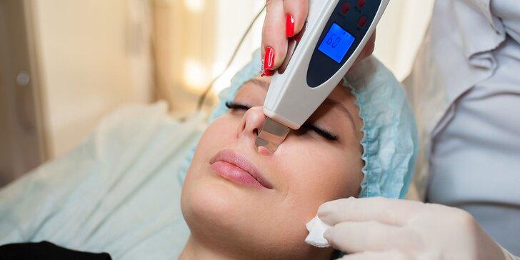 Čistenie pleti Skin Scrubberom či diamantovou mikrodermabráziou