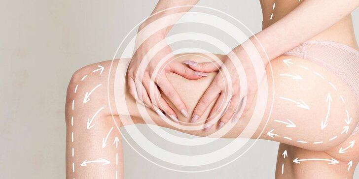 Zbohom celulitída - kombinácia špecializovaných ošetrení