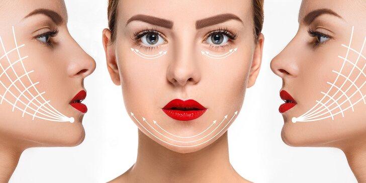 Lifting tváre vykonávaný pomocou vstrebateľných 4D bio dermálnych nití
