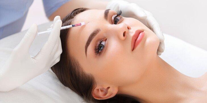 Vyplnenie vrások Botoxom - okolie očí, čelo alebo medziobočie