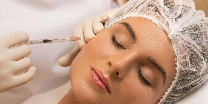 Aplikácia 1,5 ml kyseliny hyalurónovej do oblasti tváre