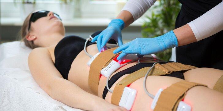 Zoštíhľujúca kúra lipolaserom v Body Zone