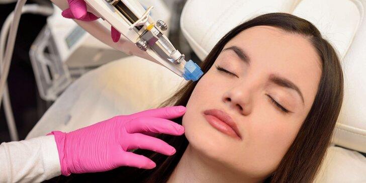 Omladenie pokožky pomocou Vital Injectoru s kyselinou hyalurónovou