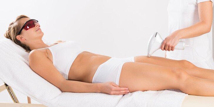 Trvalá epilácia chĺpkov SHR technológiou pre ženy aj mužov
