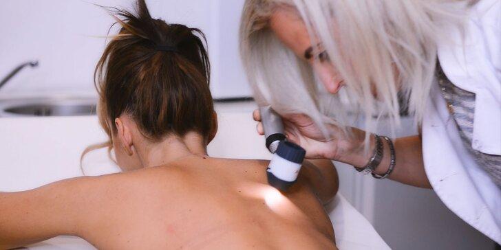 Dermatoskopické vyšetrenie znamienok s konzultáciou