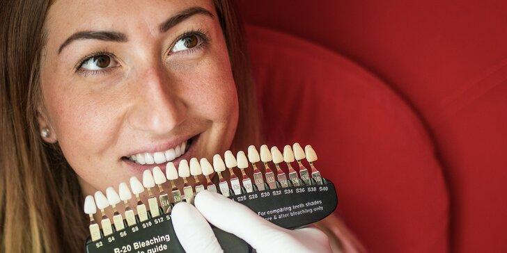 Žiarivý perleťový úsmev po bielení zubov v ZaRa Salóne