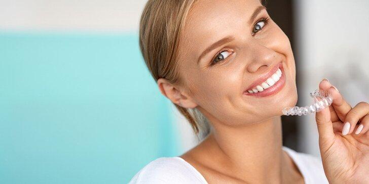 Konzultácia a zľava na neviditeľný zubný strojček INVISALIGN
