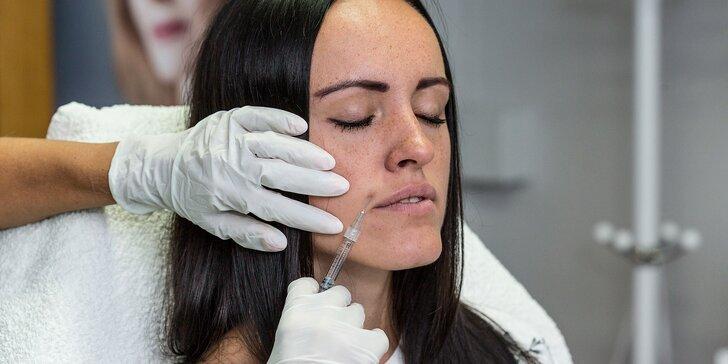 Aplikácia botulotoxínu proti vráskam v salóne Dermafresh