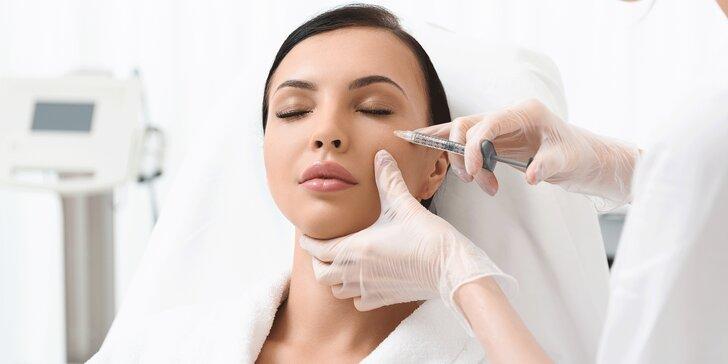 Odstránenie mimických vrások botoxom a ošetrenie pleti