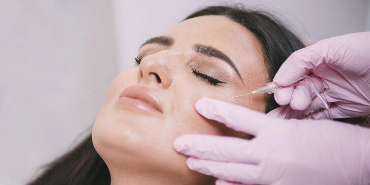 Unikátna neinvazívna karboxyterapia v BSM beauty