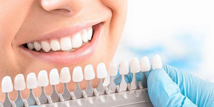 Laserové bielenie zubov PEARLSMILE® v Košiciach aj v Prešove