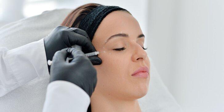 Aplikácia botulotoxínu do časti tváre podľa vášho výberu