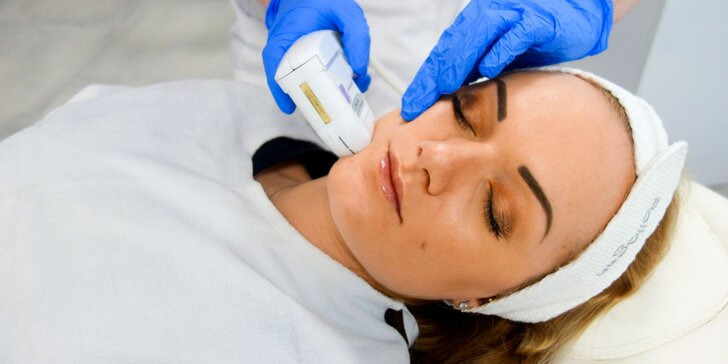 Ultherapia neinvazívny lifting: krk, podbradok a líca