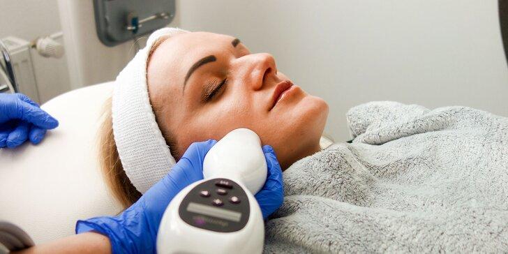 Omladenie tváre, krku či dekoltu Thermage liftingom v Elite Clinic
