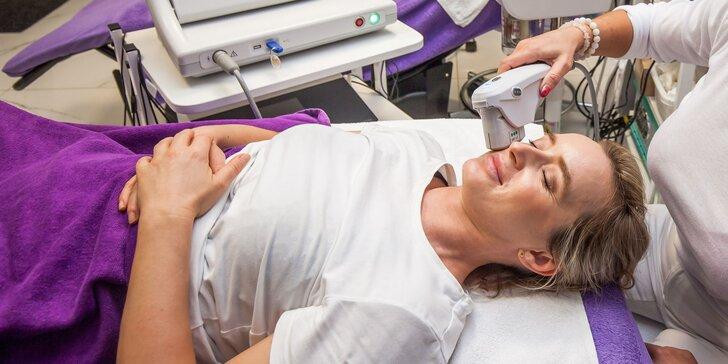 Hifutherapy - nechirurgický lifting tváre či vybraných častí tela