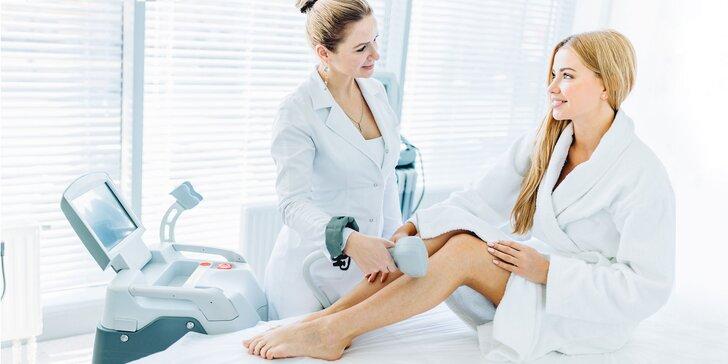 IPL epilácia - Trvalé odstránenie chĺpkov bezbolestnou metódou
