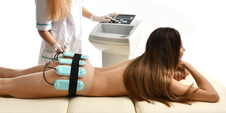 Neinvazívna liposukcia lipolaserom alebo kryolipolýza