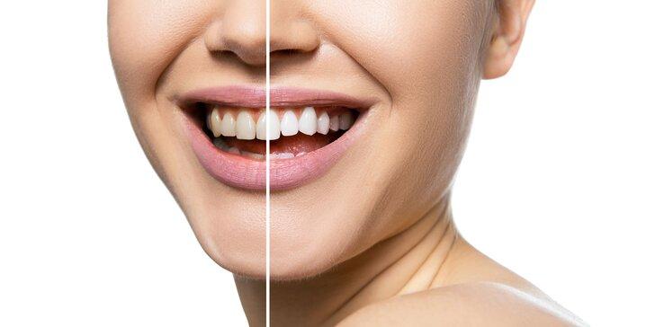 Žiarivo biely úsmev s laserovým bielením zubov bez peroxidu