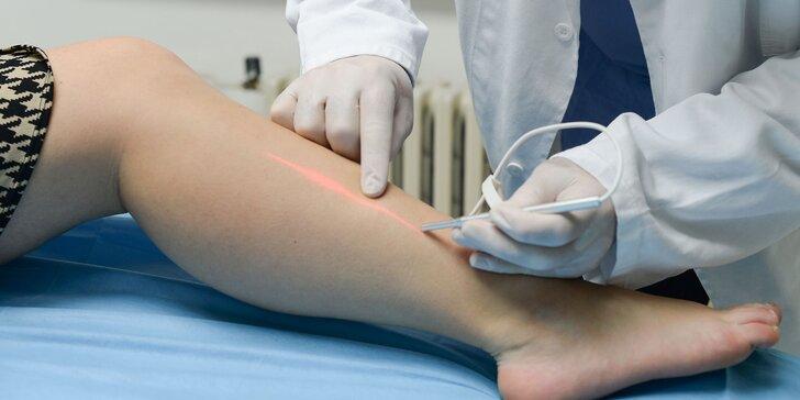 Vyšetrenie kŕčových žíl na klinike REVIVE