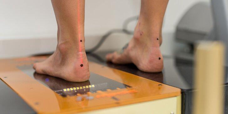 Diagnostika chodidla pomocou 3D laserfootscanu či posturálna diagnostika