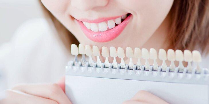 Expresné alebo kompletné laserové bielenie zubov v Brilliant Smile