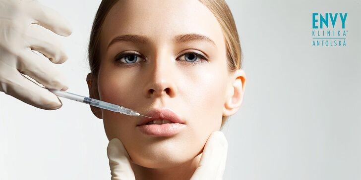 Korekcia pier kyselinou hyalurónovou s bielením zubov či aplikácia botoxu