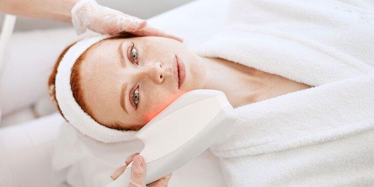 Lifting alebo liečba akné jedinečnou svetelnou terapiou E-light