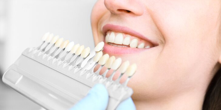 Expresné alebo kompletné laserové bielenie zubov- výhodný balíček pre dvojice