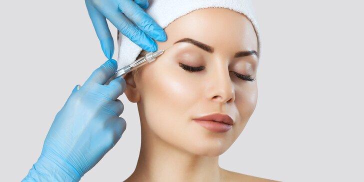 Aplikácia botoxu Bocouture do medziobočia, čela a okolia očí